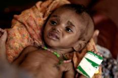 Een dodelijke combinatie van uitgebleven regen en stijgende voedselprijzen zorgen voor een desastreuze voedselcrisis in Oost-Afrika, die meer dan tien miljoen mensen treft. In delen van Djibouti, Ethiopië, Kenia, Somalië en Uganda zijn oogsten mislukt, landbouwgrond uitgedroogd en vee gestorven. Daarmee zijn families hun inkomen, bron van levensonderhoud en voedselvoorraad kwijt geraakt.  Zoals de familie van de zes weken oude Ibrahim, zoon van de 16 jarige Fatuma. Zij zegt: 'al ons vee is dood. Ik kan hem geen melk of eten meer geven.'Velen vluchten naar vluchtelingenkampen, zoals Dadaab: het grootste vluchtelingenkamp ter wereld. Hier belanden ziBij deze foto hoort een APS persbericht. ANP PHOTO PERSSUPPORT Foto en bijschrift vallen buiten de redactionele verantwoordelijkheid van de Algemene Nieuwsdienst van het ANP. Foto is vrij van rechten en mag alleen redactioneel gebruikt worden in de context van het geleverde bijschrift.