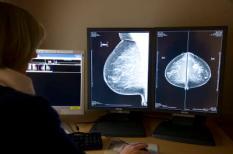 ROTTERDAM - Een radioloog bekijkt digitale rontgenfoto's in de onderzoeksunit van de Stichting Bevolkingsonderzoek Borstkanker in Rotterdam. ANP PHOTO XTRA KOEN SUYK **ATTENTIE REDACTIES: BEELDEN ALLEEN TE GEBRUIKEN RONDOM HET THEMA BORSTKANKER**
