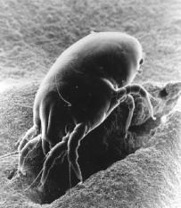 Een sterk vergrote opname van de Dermatophagiodes Pteronyssinus of huisstofmijt. Behalve de invloed van schimmels op de gezondheid speelt ook deze griezel daarbij een belangrijke rol. Zijn bestaan is afhankelijk van een vochtig milieu (relatieve vochtigheid meer dan 70%); een situatie die zich vrijwel in elke woning voordoet.