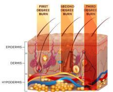 Het doordringen in de huid van een eerste, tweede en derdegraads brandwond.