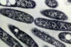 De Legionella Pneuophila bacterie ongeveer negenduizend keer uitvergroot met een electronen microscoop. De bacterie is de veroorzaker van de veteranenziekte.