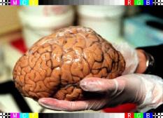 Gezocht: hersenen. De Hersenbank heeft een nijpend tekort aan hersenen voor onderzoek naar de dodelijke spierziekte multiple sclerose (MS). Vorig jaar kreeg de bank slechts de hersenen binnen van 5 overleden patienten. Te weinig om goed onderzoek te verrichten. Daarvoor zijn 15 hersenen nodig met eenzelfde aantal als controlegroep.