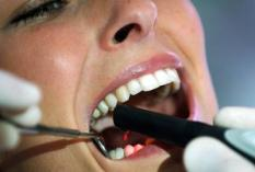 epa000410726 A laser highlights the teeth of a patient to show hidden caries between the teeth at the International Dental Show (IDS) in Cologne, Germany, Monday, 11 April 2005. The IDS runs from 12 April to 16 April 2005, where 1,550 exhibitors from 50 countries present their productsin the area of dentistry and dental hygene.  EPA/Oliver Berg
